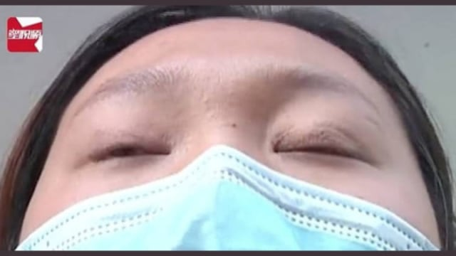 Viral, Wanita Ini Terpaksa Tidur dengan Satu Mata Terbuka Usai Operasi Plastik (753225)