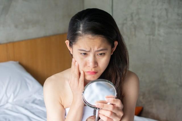 5 Fakta Niacinamide, Kandungan Skin Care Favorit Perempuan untuk Atasi Penuaan (393348)