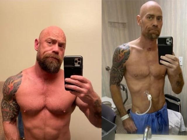 Pria Ini Bagikan Foto Tubuh Dirinya Sebelum dan Sesudah Kena Corona (49251)
