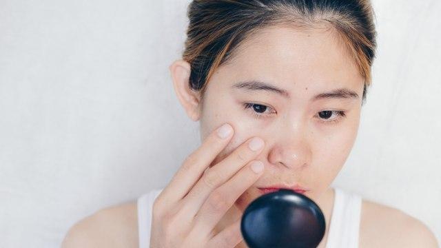 Obat Tetes Mata Untuk Bekas Jerawat Merah