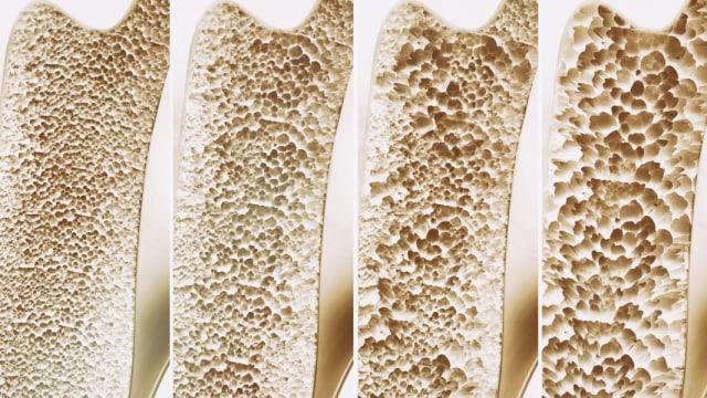 Osteoporosis Juga Bisa Dialami Anak! Ini Penyebab dan Gejalanya (211533)