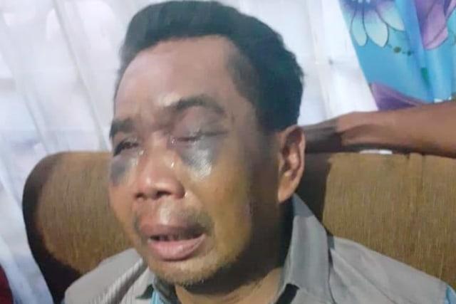 Saksi Pembunuhan Babak Belur Dianiaya Oknum Polisi, Kapolsek di Medan Dicopot (110697)