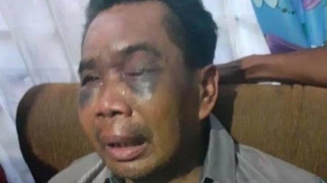Kata Kapolrestabes Medan soal Dugaan Penganiayaan Saksi Pembunuhan (307941)
