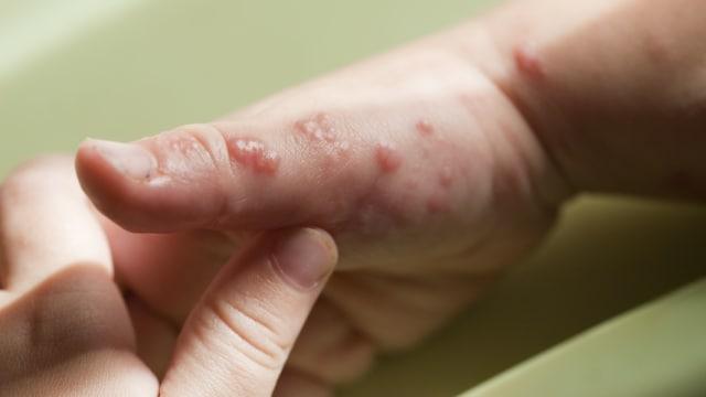 Berikut Penyakit yang Sering Muncul saat Musim Hujan (48026)