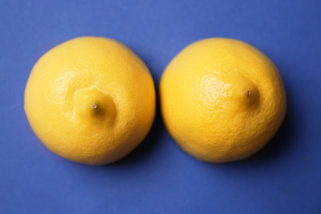 Ladies, Ini 6 Penyebab Puting Payudara Berubah Warna Jadi Lebih Gelap (318303)