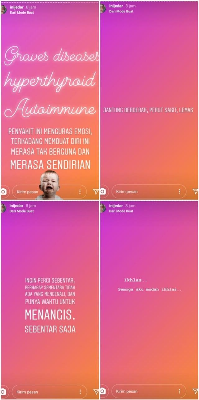 Jessica Iskandar Curhat soal Penyakitnya: Kadang Membuat Diri Merasa Tak Berguna (1223506)