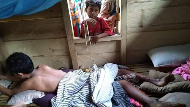 Kisah Pilu Astain, Anak Yatim di Donggala yang Alami Penyakit Aneh (76167)