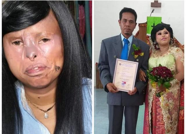 Viral Pernikahan Sortalina di Samosir, Ketika Cinta Tak Memandang Fisik (144406)