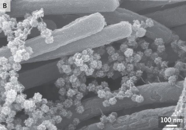 Ini Foto Mengerikan Kumpulan Virus Corona yang Menempel di Saluran Napas Manusia (3847)