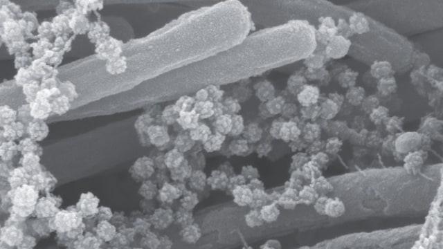 Ini Foto Mengerikan Kumpulan Virus Corona yang Menempel di Saluran Napas Manusia (3845)