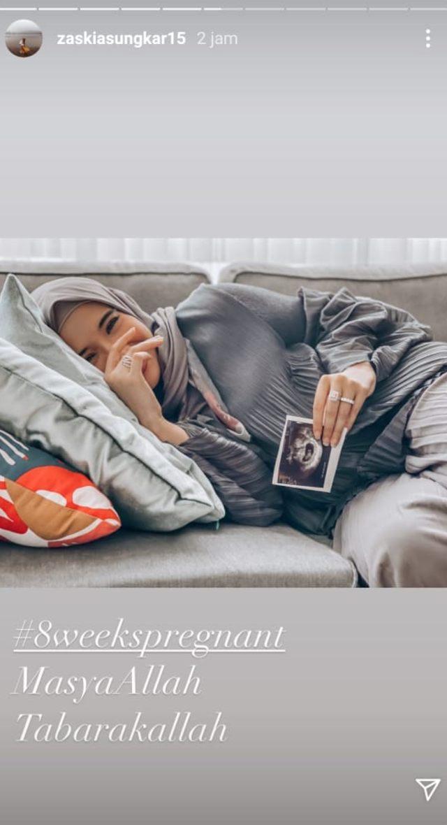 Hampir 10 Tahun Menanti, Zaskia Sungkar Hamil Anak Pertama (2)