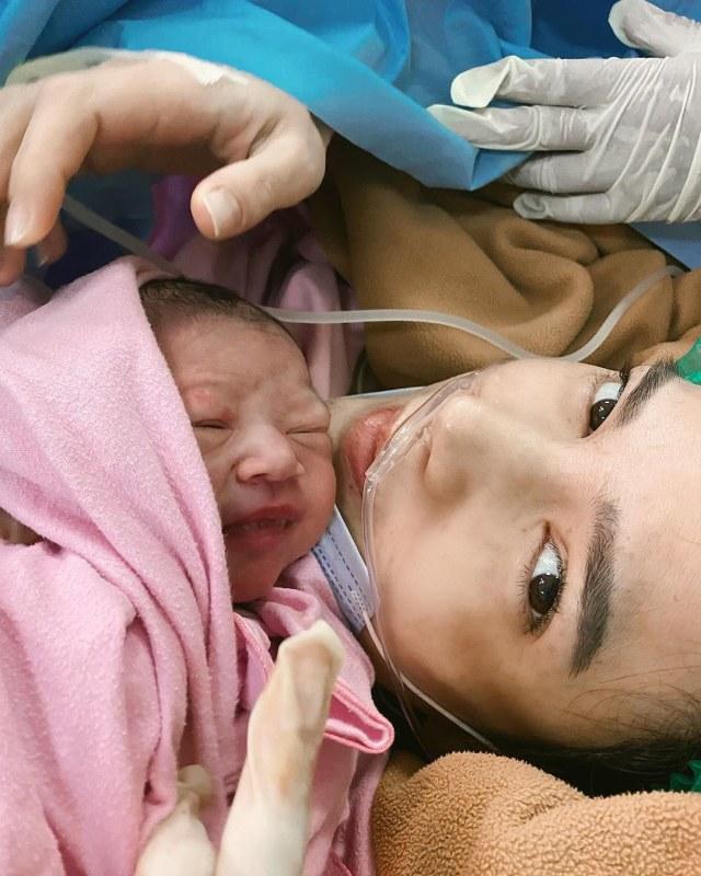 Cerita Alice Norin Melahirkan dengan Kondisi Placenta Previa Totalis Accreta (236931)