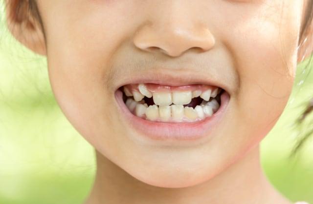 Kenapa Gigi Anak Tumbuh Berjejal?  (637522)