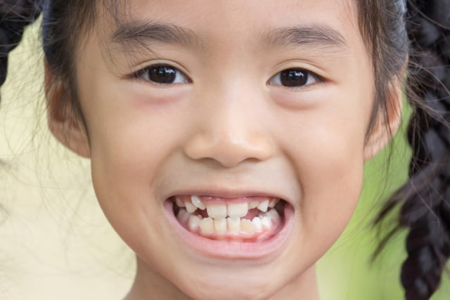 Kenapa Gigi Anak Tumbuh Berjejal?  (637523)