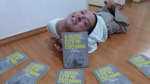 Kisah Claudio Oliveira, Motivator Dunia yang Terlahir dengan Kepala Terbalik (312856)