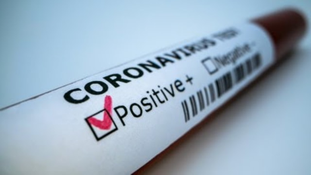 Update COVID-19: Seorang Pegawai BPJS Pangkalpinang Terpapar Corona  (216909)