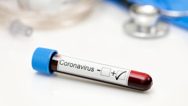Update Corona di Kalbar: Kasus COVID-19 Bertambah 22 Orang (309878)