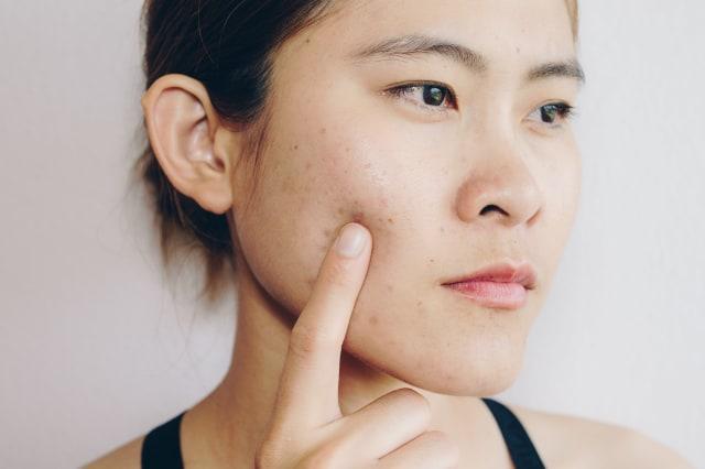 4 Tips Cegah Timbulnya Jerawat karena Memakai Masker (113212)
