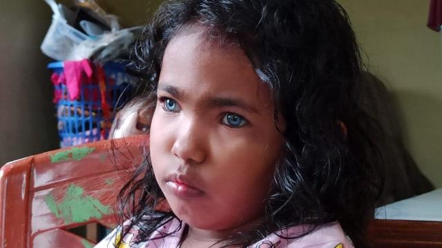 Inilah Anak dan Ayah Bermata Biru di Pekanbaru (79875)
