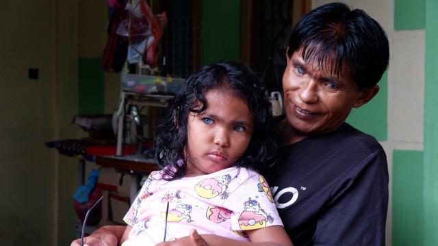 Inilah Anak dan Ayah Bermata Biru di Pekanbaru (79877)