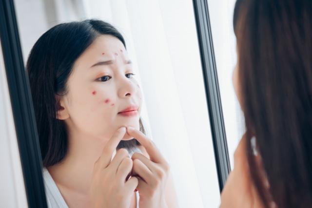 5 Manfaat Clay Mask untuk Kulit Wajah, Mengatasi Jerawat hingga Kulit Kering (28931)