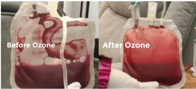 Medical Therapy Ozone, Cara Baru Lawan Virus dan Bakteri Selama Pandemi (78802)