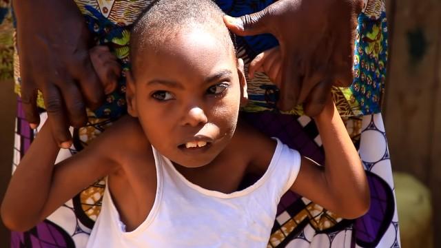 Bocah 13 Tahun Ini Hidup dengan 70 Gigi: Mulut Sulit Menutup, Susah Makan (3)