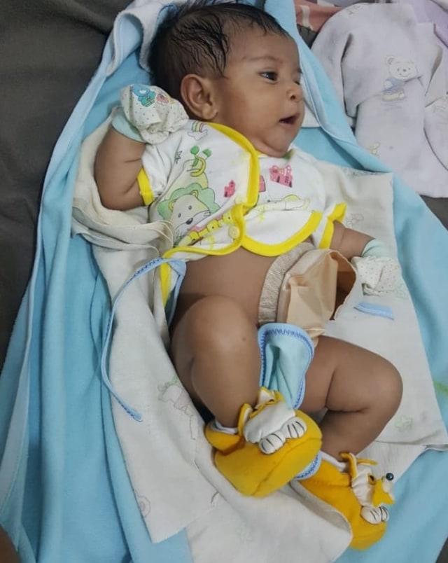 Bayi Kristina Lahir Tanpa Lubang Anus, Orang Tua Tak Ada Biaya Operasi  (2876)