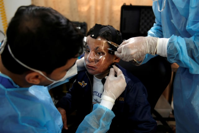 Foto: Pembuatan Topeng 3D Transparan Bagi Penderita Luka Bakar di Gaza (99022)