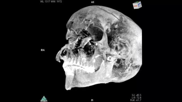 Ilmuwan Ungkap Mumi Raja Mesir Kuno, Dibunuh Sangat Brutal Sebelum Meninggal (24732)