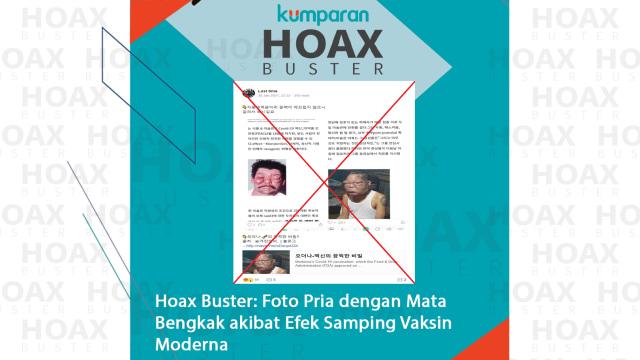 Hoaxbuster: Foto Pria dengan Mata Bengkak Akibat Efek Samping Vaksin Moderna (222083)