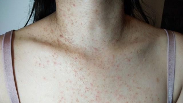 Apa Itu Fungal Acne dan Bagaimana Cara Menghilangkannya? (86094)