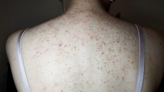 Apa Itu Fungal Acne dan Bagaimana Cara Menghilangkannya? (86095)