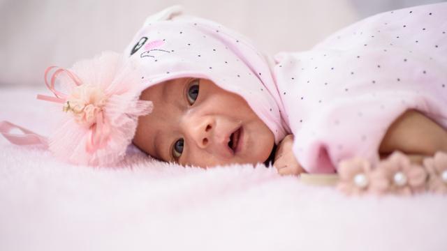 Mengenal Sindrom Crouzon, Kelainan pada Bentuk Tengkorak Bayi (42691)