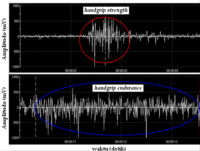 Electromyography (EMG), Ketika Otot Rangka Manusia Menghasilkan Listrik (93158)