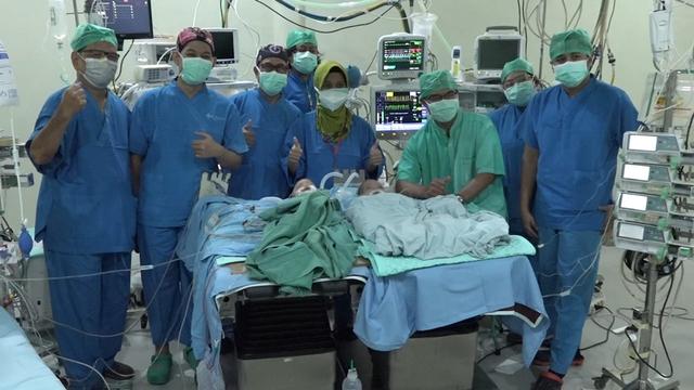 RS Moewardi Solo Lakukan Operasi Pemisahan Bayi Kembar Siam (379686)