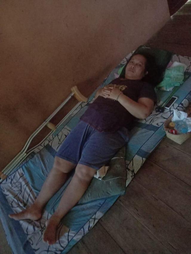 Peladang Kalbar Alami Patah Tulang Selangka, Yusnati Rita Butuh Uluran Tangan (241842)