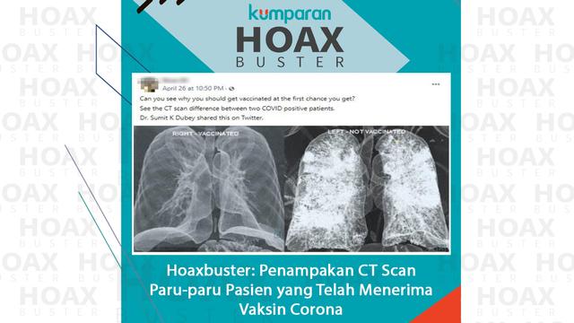 Hoaxbuster: Foto CT Scan Paru-paru Pasien yang Telah Menerima Vaksin Corona (63944)