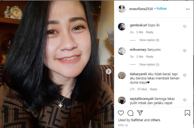 Perawat di Malang yang Diserang dan Dibakar Wajahnya Sudah Menikah, Punya 2 Anak (101419)