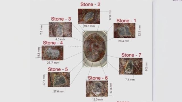 Inilah 7 Keping Hajar Aswad dan Ukurannya (58280)