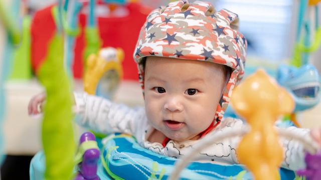 Kepala Bayi Baru Lahir yang Peyang, Apakah Bisa Berubah? (239492)