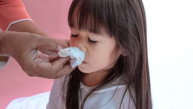 Anak Mimisan, 4 Hal Ini Bisa Jadi Penyebabnya (3)