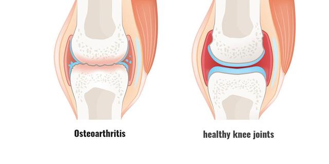 Osteoarthritis: Penyebab, Gejala, dan Tatalaksananya (360435)