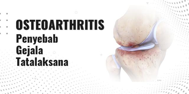 Osteoarthritis: Penyebab, Gejala, dan Tatalaksananya (360434)