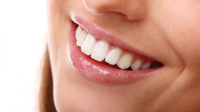 Cara Memutihkan Gigi dengan Aman, Dijamin Ampuh! (163462)