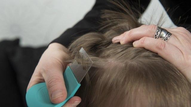 Cara Menghilangkan Kutu Rambut secara Alami, Bisa Pakai Minyak Kayu Putih? (326262)