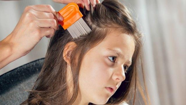 Cara Menghilangkan Kutu Rambut secara Alami, Bisa Pakai Minyak Kayu Putih? (326264)