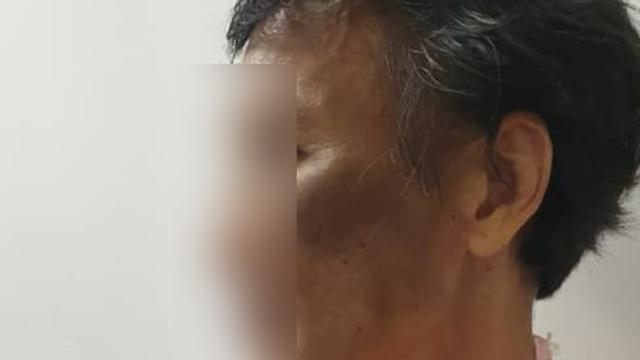 WNI di Malaysia Disiksa Majikan: Dipukul dan Hanya Digaji 3 Kali dalam 2 Tahun (30435)