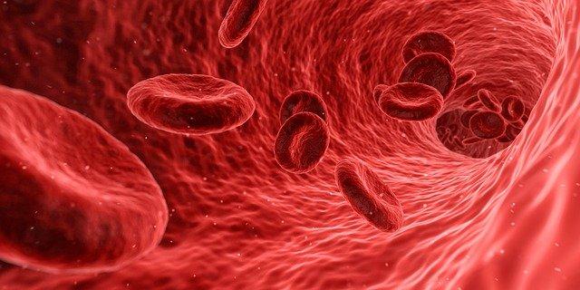 Penyebab Gangguan pada Organ Peredaran Darah Manusia (36107)