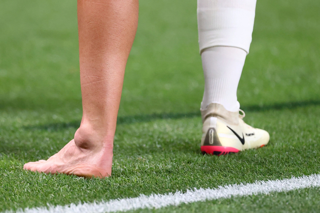 Dani Ceballos Cedera Ankle Usai Kenal Tekel Horor Pemain Mesir di Olimpiade 2020 (140401)